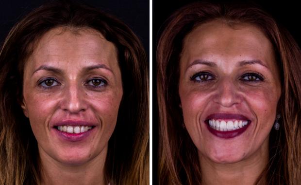 Implante + Facetas Marisa Miranda