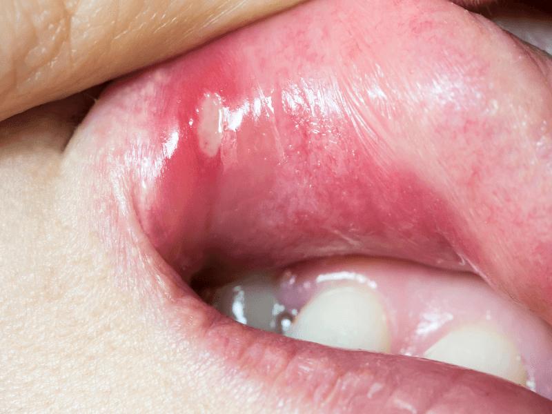 Afta no lábio