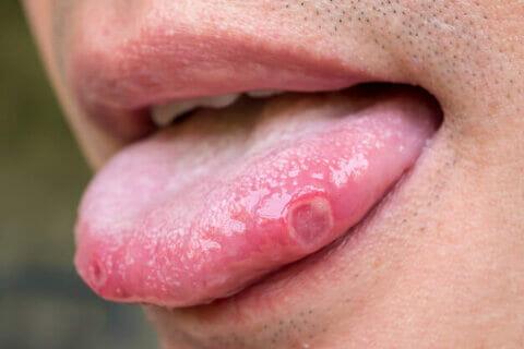 imagem de uma afta na língua