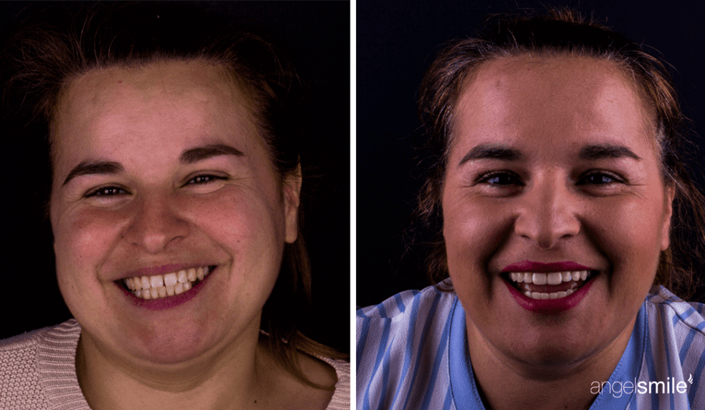 antes e depois de paciente que realizou tratamento com facetas