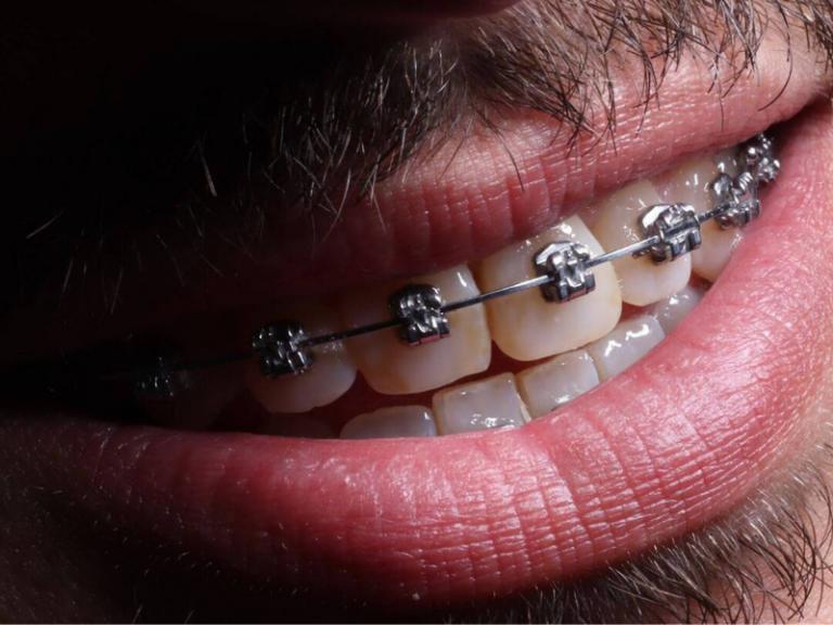 imagem de um dos tipos de aparelhos dentários
