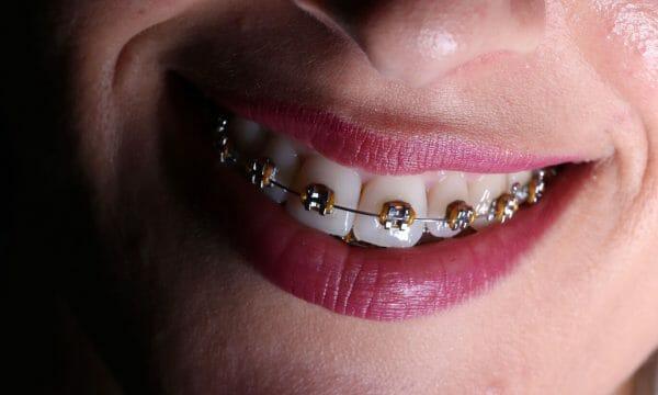 imagem de um aparelho dentário metálico