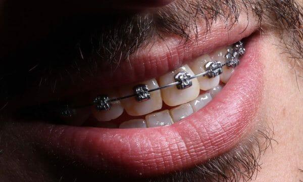 imagem de um paciente com aparelho dentário