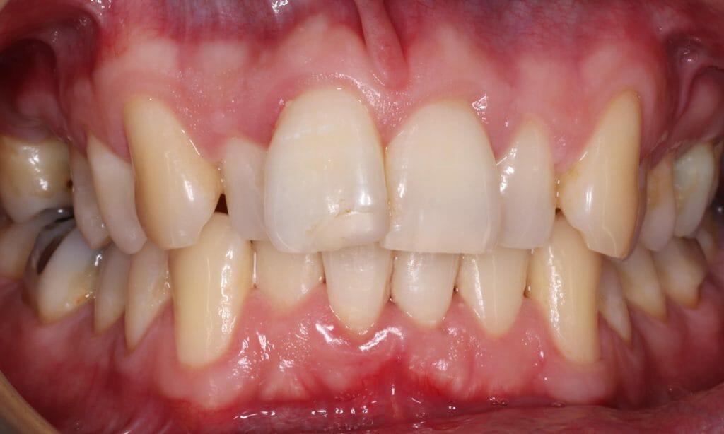 imagem de um caso de apinhamento dentário
