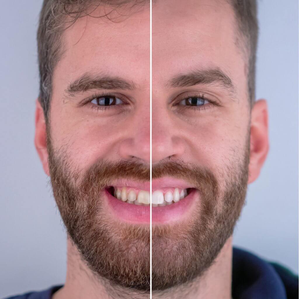 branqueamento dentário - antes e depois