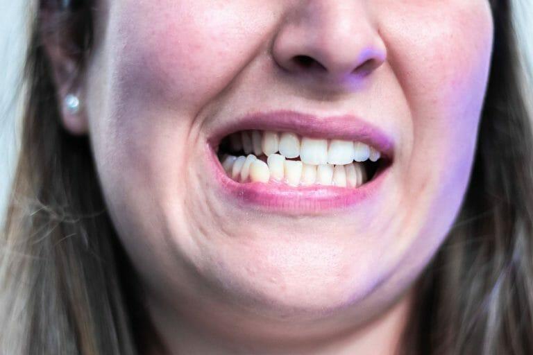 imagem de paciente a ranger os dentes (bruxismo)