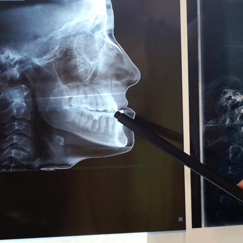 imagem de uma radiografia com indicação para cirurgia para ortognática
