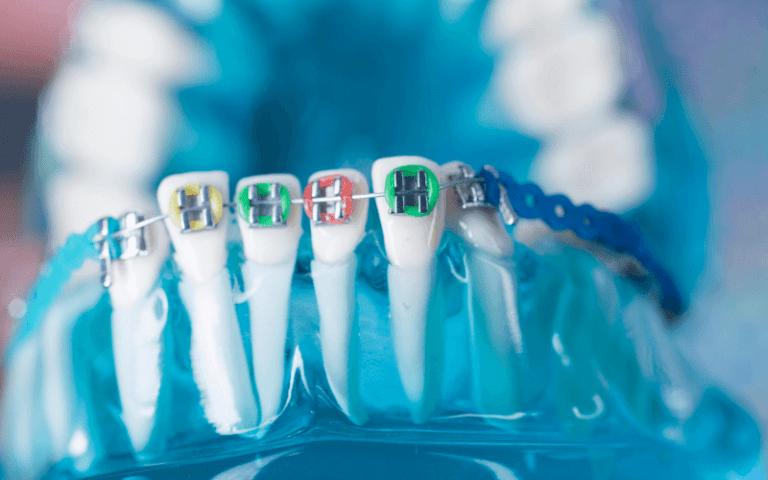 imagem de várias cores para aparelho dentario