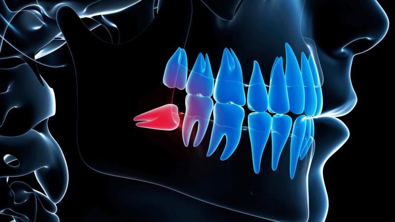 Imagem explicativa de um dente do siso deitado
