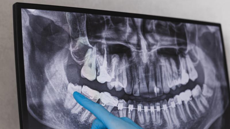 imagem do Médico Dentista a apontar onde fica localizado o dente do siso