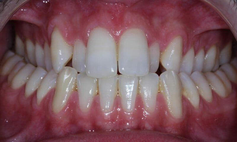 Imagem de dentes tortos - Mordida Cruzada