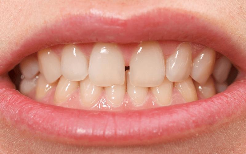 imagem de um caso de diastema