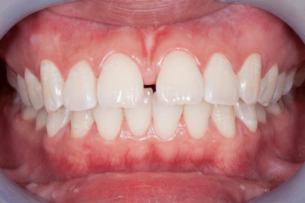 Imagem de um diastema
