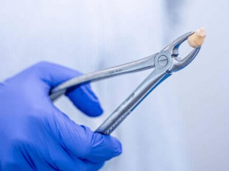 imagem de dente do siso depois de ser extraído