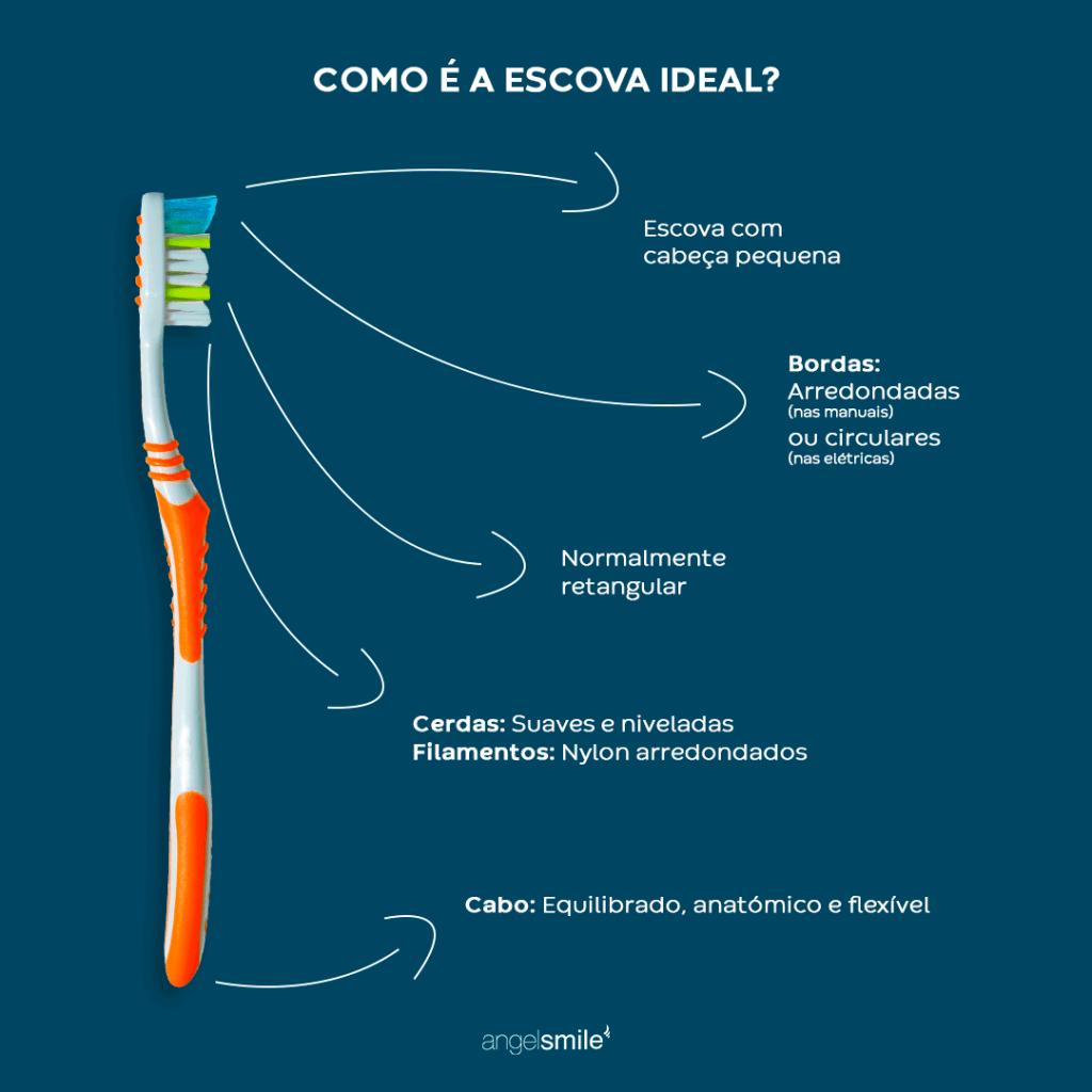 https://angelsmile.com.pt/wp-content/uploads/2021/06/Infografico-escolher-escova-de-dentes.png
