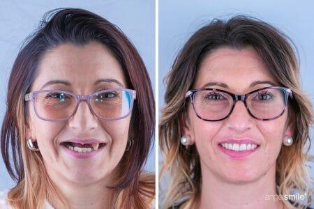 imagem de antes e depois de implantes dentários 2
