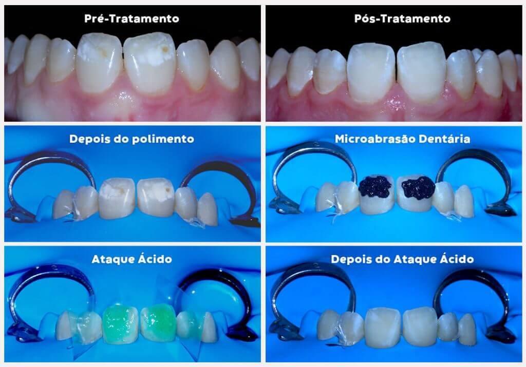 imagem das fases do processo de microabrasão