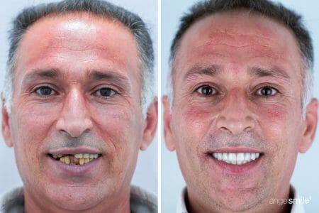 imagem antes e depois de implantes dentários 1