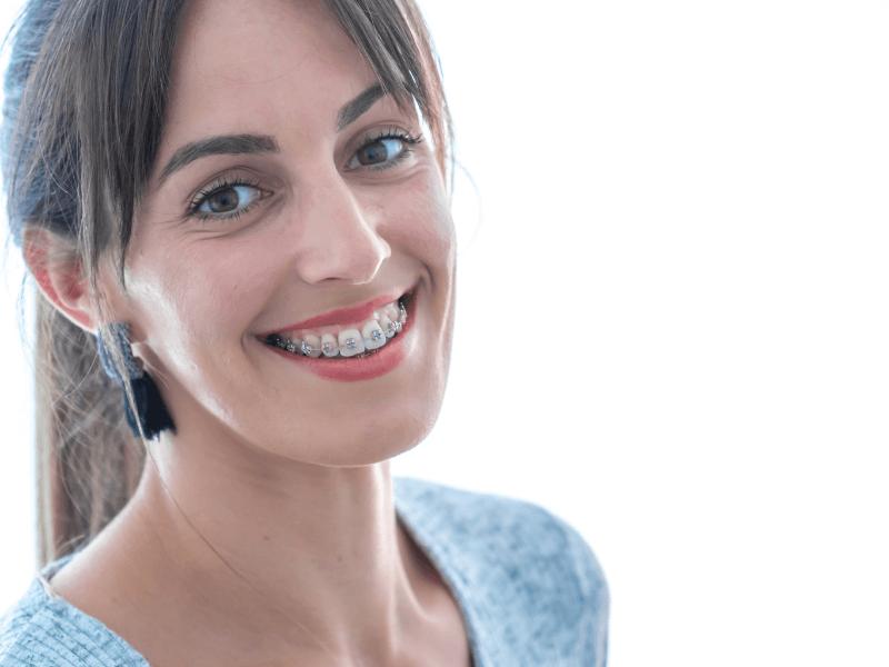 paciente satisfeita com tratamento de ortodontia