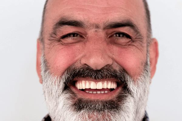imagem de paciente a sorrir depois de colocar all-on-four