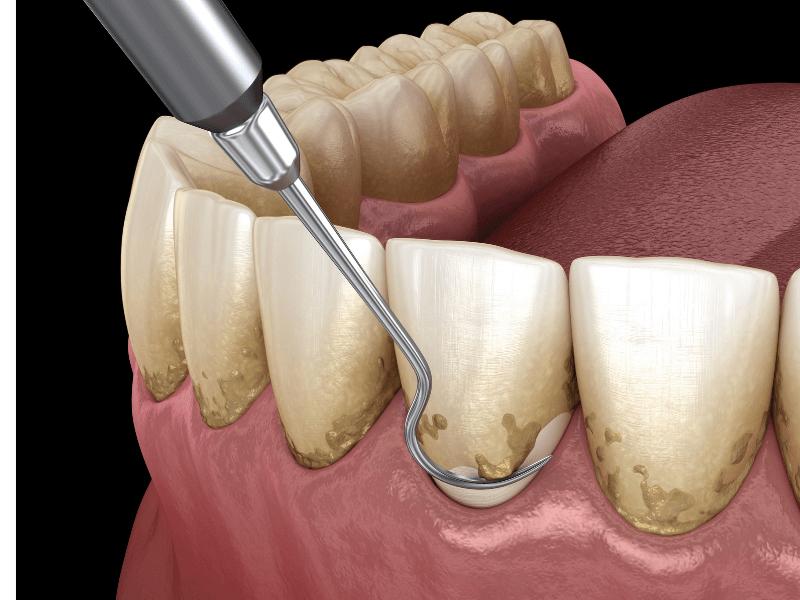 imagem de placa dentária acumulada nos dentes