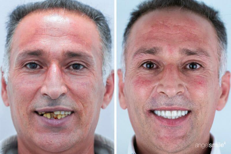 imagem de prótese dentária: antes e depois