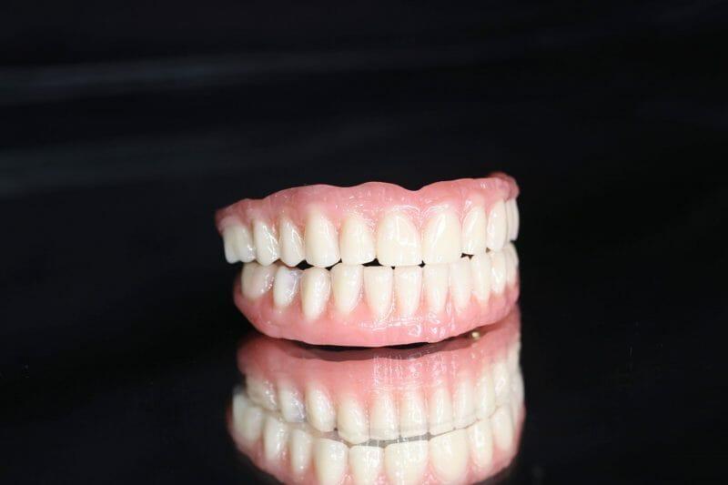 imagem de uma prótese fixa