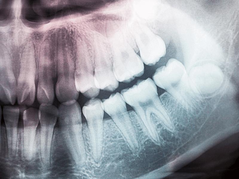 imagem de uma radiografia periapical