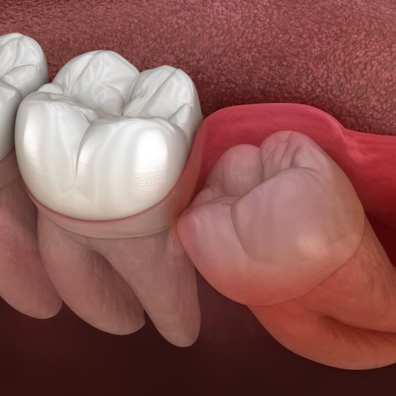 imagem de um dente do siso incluso
