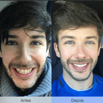 imagem de um antes e depois com invisalign