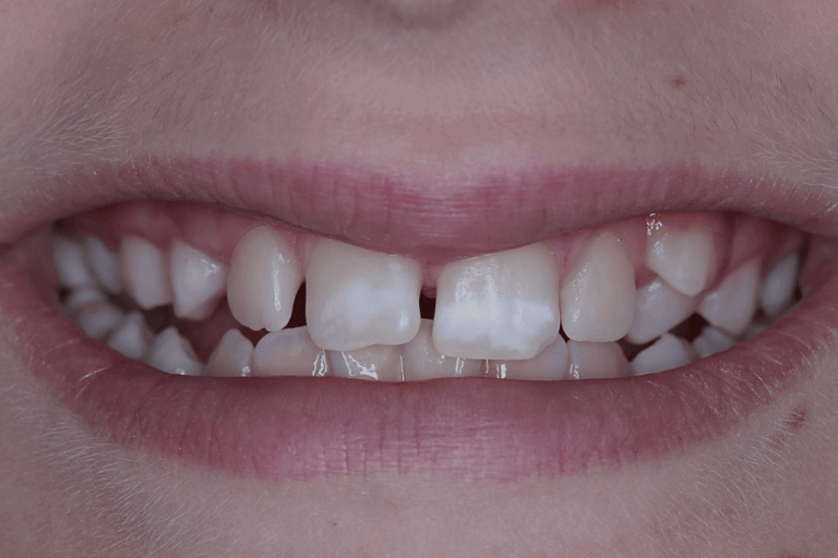Criança com manchas brancas nos dentes