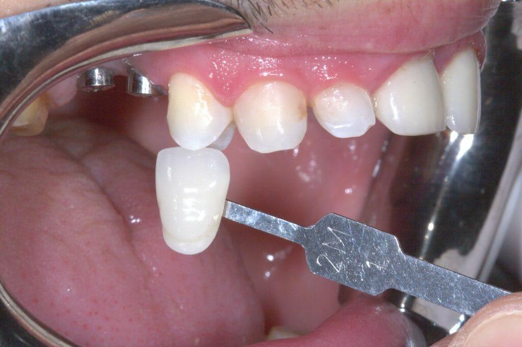 seleção da cor das coroas dentárias
