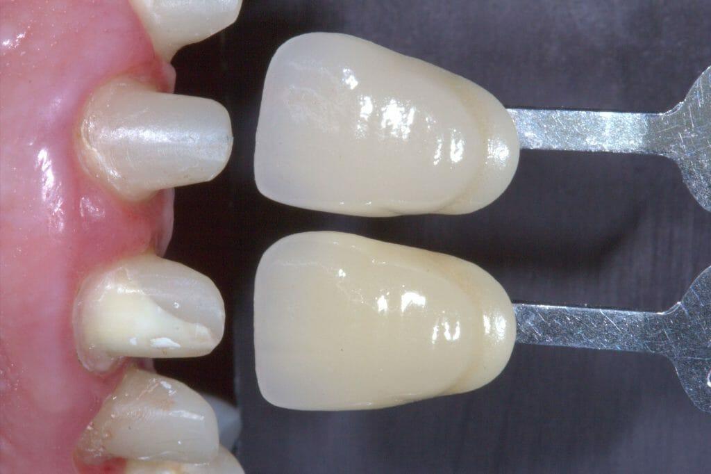 exemplo de coras dentárias
