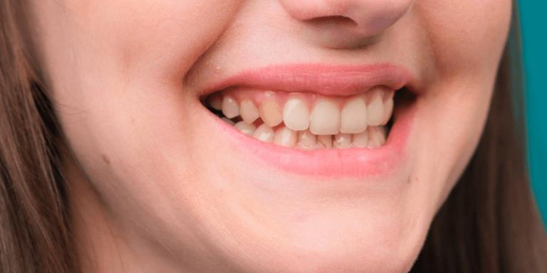 paciente com dentes amarelos