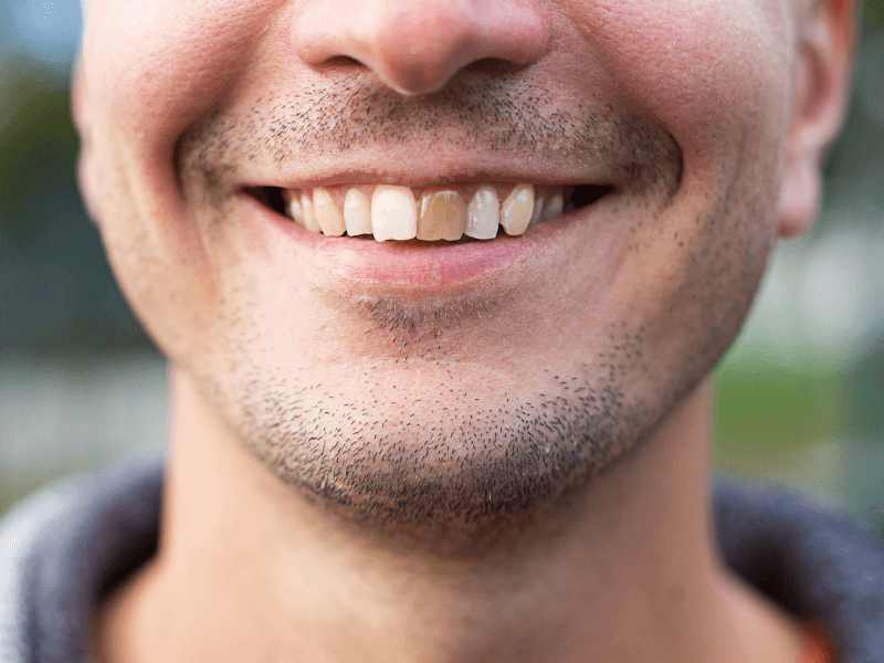 paciente com esmalte dos dentes desgastado
