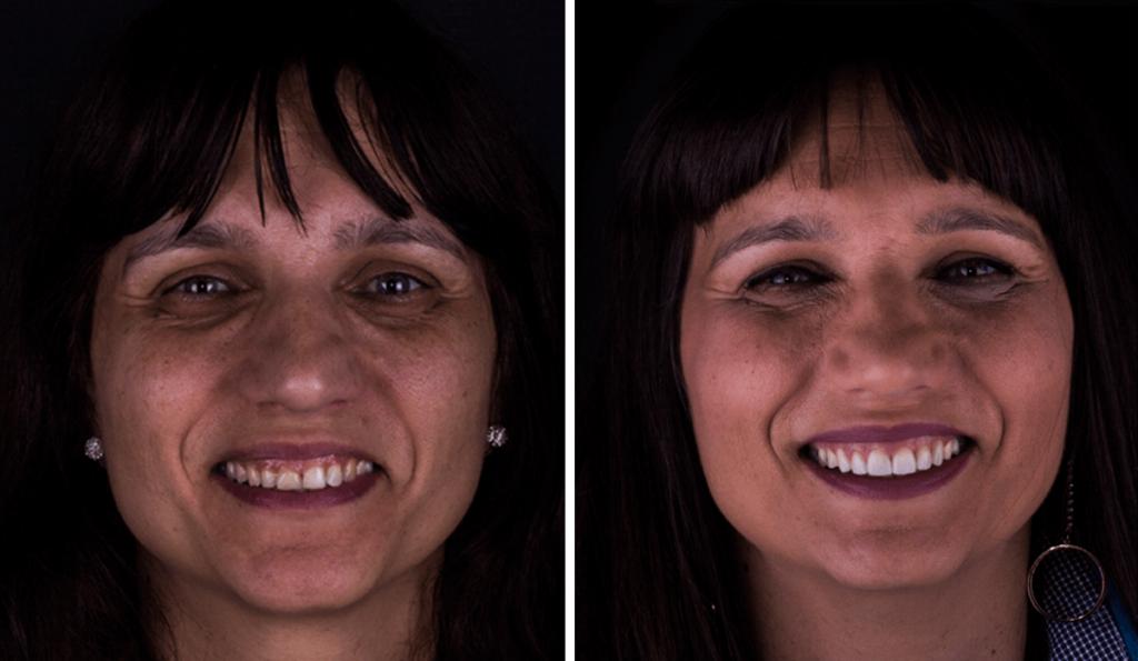 imagem de uma paciente que realizou tratamento com facetas (antes e depois)