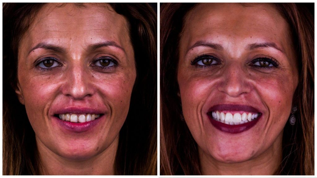 imagem de um antes e depois do tratamento com facetas dentarias