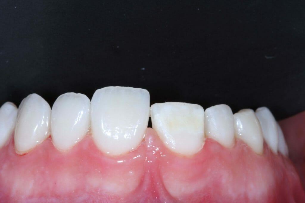 imagem de uma faceta colocada num dente