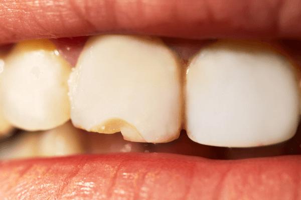 imagem de um dente lascado