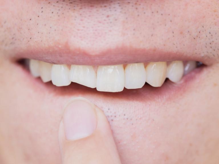 imagem de um dente partido