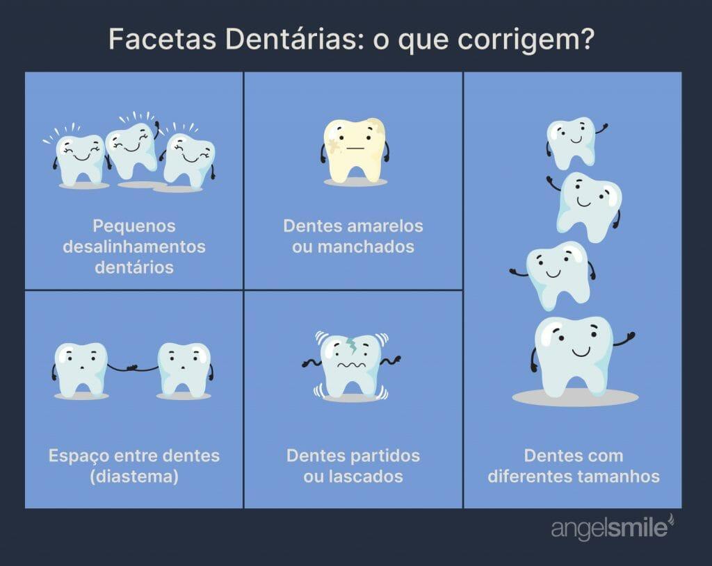 infografia - facetas dentárias: o que corrigem?